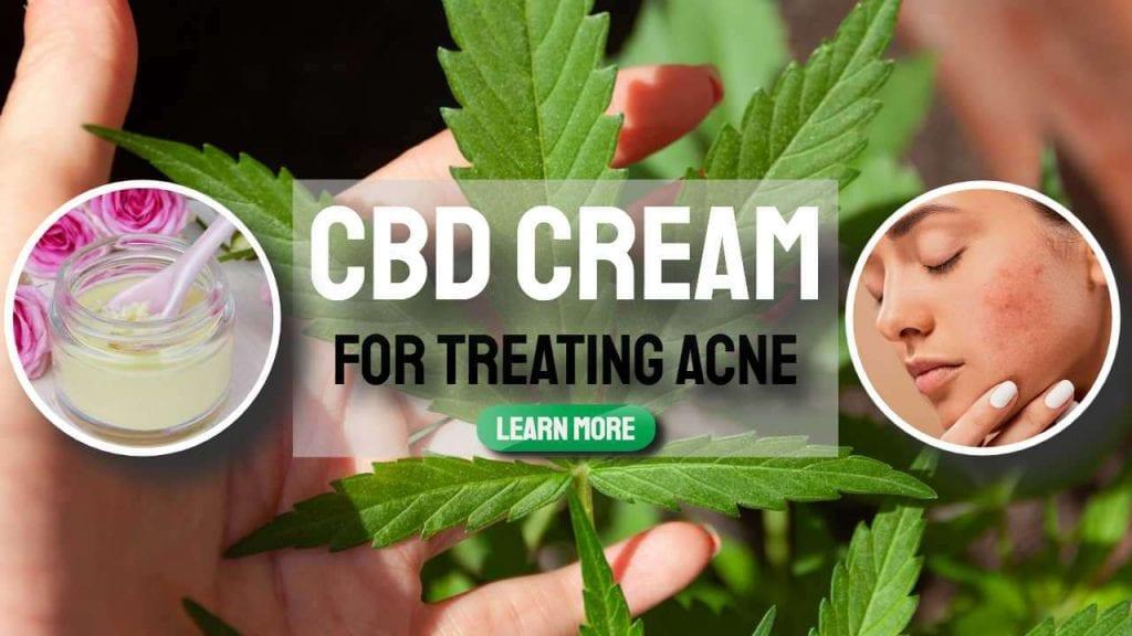 cbd cream for treating acne